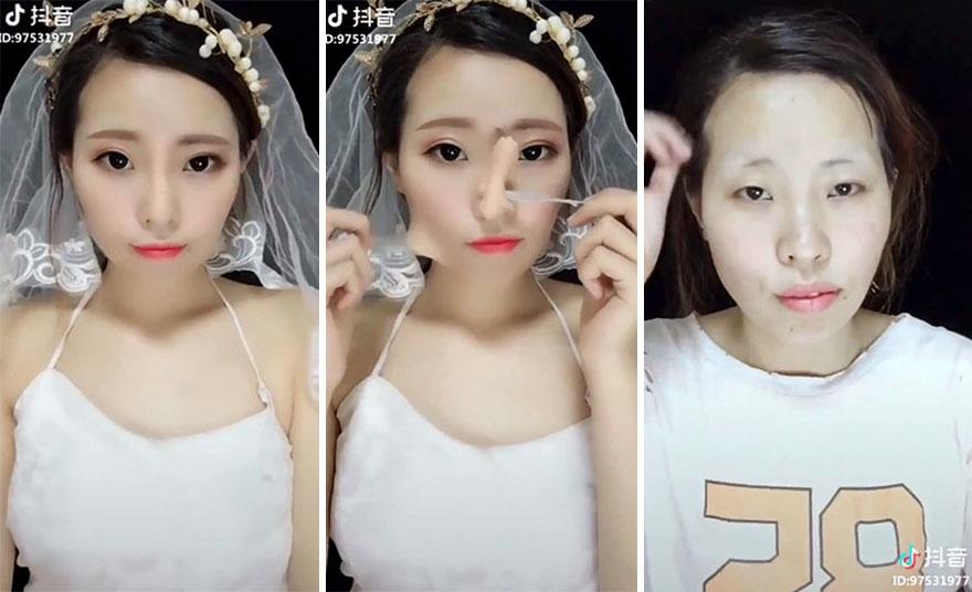 Chẳng cần phẫu thuật thẩm mỹ đau đớn, từ bây giờ các chị em đã có phương pháp nâng mũi mới.