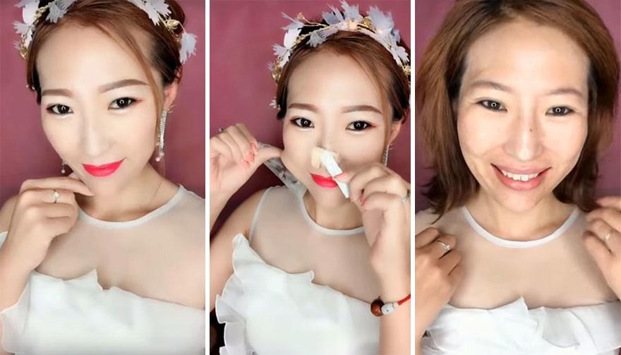Các sản phẩm làm đẹp như độn mũi và dính kéo căng da giúp cô  gái này trông trẻ hơn cả chục tuổi.