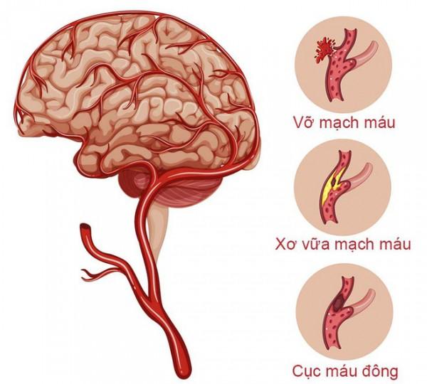 Đột quỵ - Tai biến mạch máu não - strokes