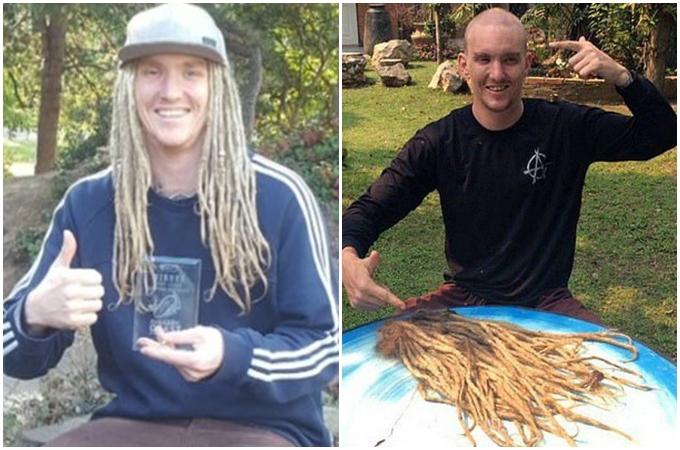 Chris Dodd trước (hình trái) và sau khi ngồi tù 12 ngày.