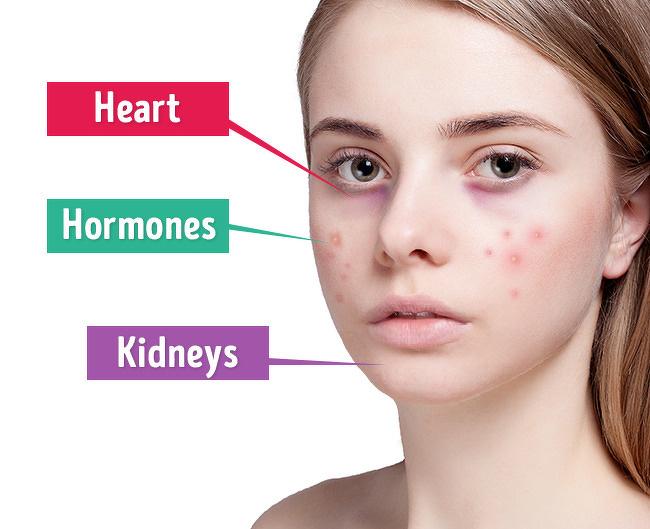 Đừng tìm cách che giấu những đốm mụn, khuyết điểm trên gương mặt. Hãy tìm cách giải quyết dứt điểm chúng. Vị trí cuả các nốt mụn đôi khi cũng tiết lộ rất nhiều điều về tình trạng của cơ thể.