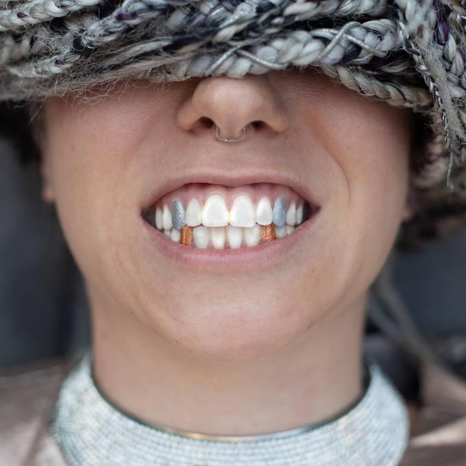 Mốt sơn màu lấp lánh lên răng được nhiều cô nàng cá tính huởng ứng.