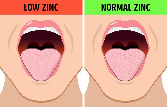 4.8 điều cơ thể muốn cảnh báo khi bạn thấy vị lạ trong miệng2