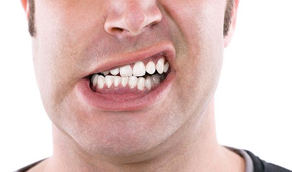10. 5 thói quen gây hại đến răng bạn không thể ngờ đến2