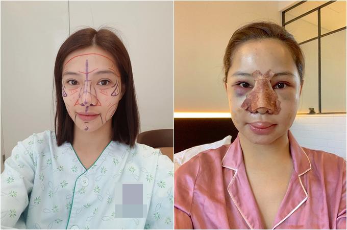 Gương mặt Lưu Đê Ly trước và sau khi phẫu thuật.