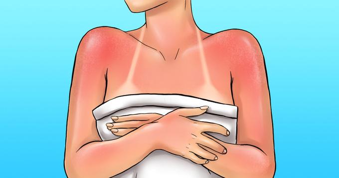 Chống nắng đầy đủ  Ánh nắng mặt trời là một trong những tác nhân gây lão hóa da hàng đầu. Để bảo vệ da, bạn nên hạn chế tắm nắng. Sử dụng kem chống nắng thường xuyên sẽ bảo vệ làn da khỏi tác hại của tia UV.
