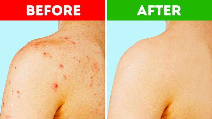 7 mẹo chăm sóc da từ nguyên liệu tự nhiên2
