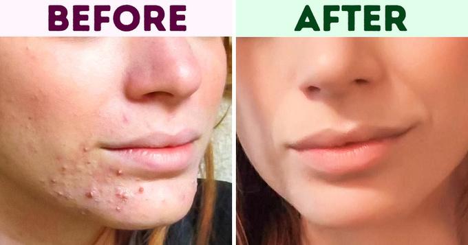 7 mẹo chăm sóc da từ nguyên liệu tự nhiên3
