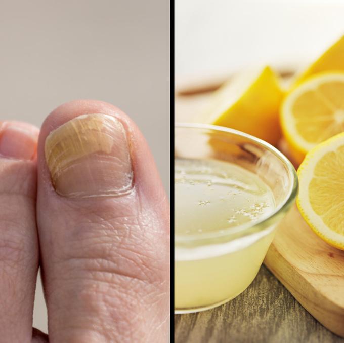 Trị móng chân ố vàng  Lấy nước cốt nửa quả chanh hòa vào nước nóng, ngâm chân trong 15 - 20 phút mỗi tối sẽ giúp làm trắng móng chân bị ố vàng.