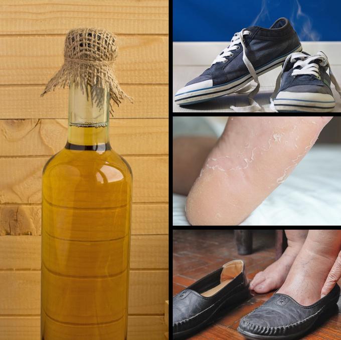 Trị mùi hôi, chân bóng da hay nứt nẻ Giấm táo có tác dụng hữu hiệu trong việc khử mùi, tẩy tế bào chết và làm mềm da chân. Trộn một phần giấm với hai phần nước nóng, ngâm chân trong khoảng 15 phút rồi lau sạch và thoa kem dưỡng.