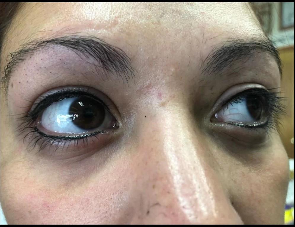 Mọi hình xăm xung quanh hốc mắt đều được xem là bất hợp pháp tại bang Georgia, Mỹ. Điều này bao gồm cả xăm mí mắt và xăm lông mày.