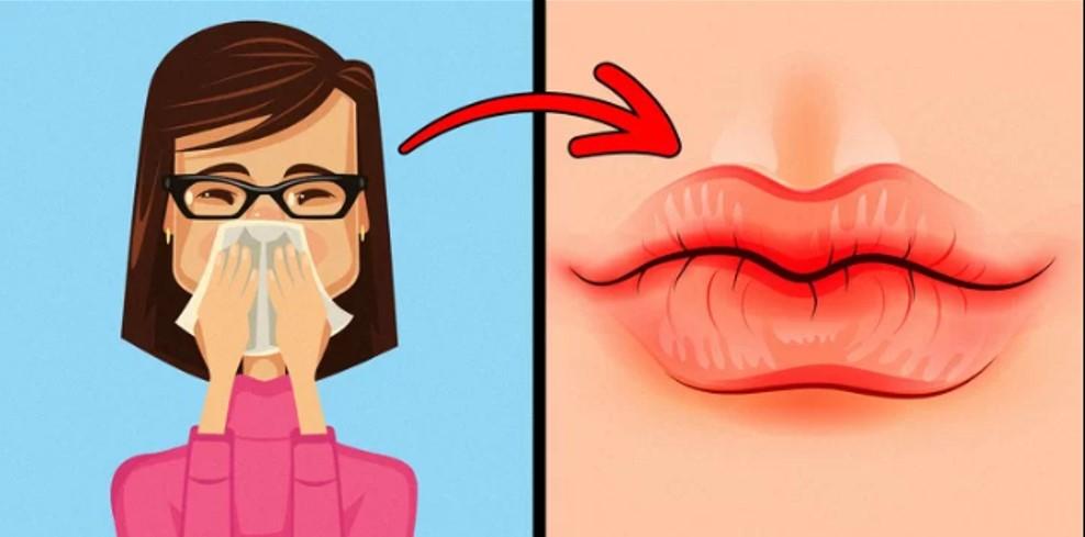 Khô và nứt nẻ môi Tình trạng này thường xảy ra khi cơ thể thiếu nước hoặc thời tiết hanh khô. Trong trường hợp này bạn nên sử dụng thêm các loại sáp, kem dưỡng môi và uống nhiều nước. Ngoài ra, nếu thấy các dấu hiệu lạ như ngứa, nóng rát… bạn không nên chủ quan.