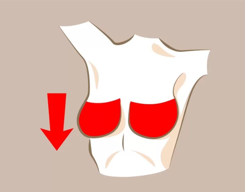 Bầu ngực chảy xệ  Đây cũng là một hiện tượng dễ gặp trong quá trình lão hóa hoặc sau khi sinh con và cho con bú. Bạn có thể cải thiện bằng cách mặc áo ngực phù hợp, tập thể dục thường xuyên và massage nhẹ nhàng với kem làm săn chắc ngực.