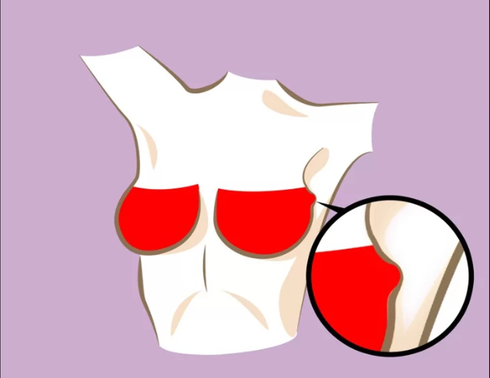 Xuất hiện khối u  Nếu bạn thấy xuất hiện những cục nhỏ bất thường ở vùng ngực, cần thăm khám bác sĩ ngay để phát hiện sớm liệu có phải đó là ung thư vú ngay không.