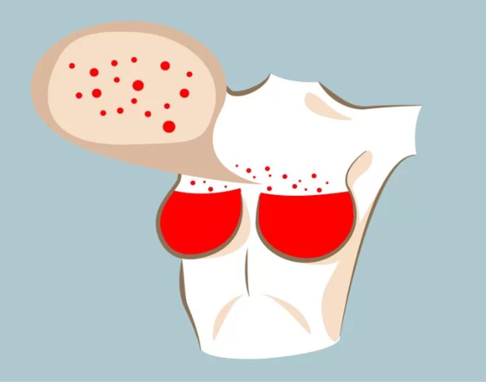 Xuất hiện các đốm đỏ  Các đốm đỏ trên da có thể là tình trạng phát ban tạm thời nhưng chúng cũng có thể là dấu hiệu của ung thư vú dạng viêm. Bạn nên tới bệnh viện để làm các xét nghiệm và điều trị kịp thời.