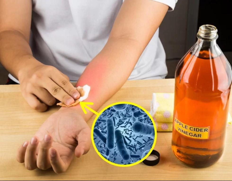 Giấm táo  Nhờ đặc tính kháng viêm mà giấm táo có tác dụng hiệu quả trong việc trị mụn, giảm tình trạng cháy nắng hoặc trị côn trùng cắn. Bạn chỉ cần pha loãng giấm táo với nước rồi nhúng bông cotton vào hỗn hợp, đắp lên vùng da cần trị liệu.