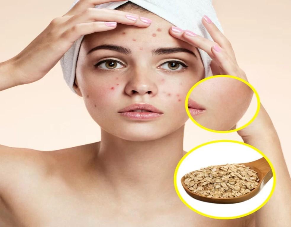 Yến mạch  Không chỉ là món ăn bổ dưỡng, yến mạch còn là nguyên liệu làm sạch, giữ ẩm và giảm viêm da hiệu quả. Hòa yến mạch vào nước tắm giúp làm mềm da, hạn chế kích ứng.