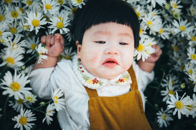 1. Bé gái mếu máo khóc khi chụp ảnh với cúc họa mi2