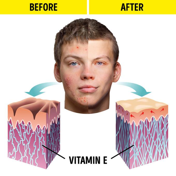 Trị mụn Nghiên cứu của Đại học Khoa học và Công nghệ Jordan đã chỉ ra những bệnh nhân bị mụn trứng cá nghiêm trọng thường có ít hơn 9% vitamin E trong máu. Hạnh nhân giàu vitamin E và chất chống oxy hóa,  giúp bạn chữa mụn trứng cá và làm trẻ hóa làn da. Sử dụng hạnh nhân để chữa bệnh và cải thiện tình trạng da là bài thuốc lâu đời của người Trung Đông.