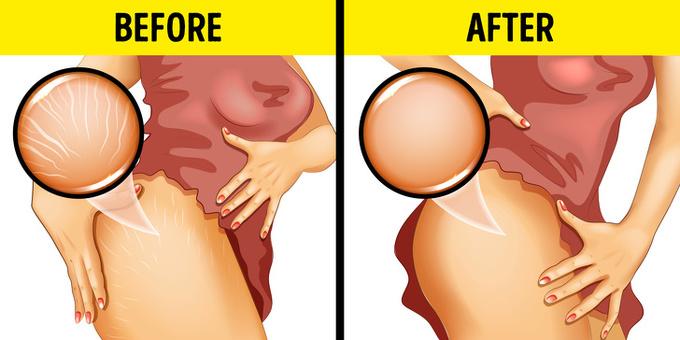 Giảm rạn da  Hàm lượng omega 3 cao trong hạnh nhân giúp giảm đáng kể các triệu chứng rạn da. Đây cũng là thực phẩm giúp phụ nữ sau sinh phục hồi nhanh chóng.