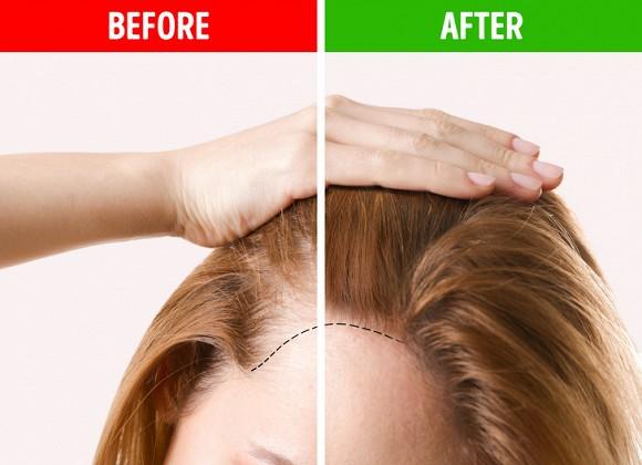 Những mẹo hô biến mái tóc mỏng tang thưa thớt trở nên dày hơn trông thấy4