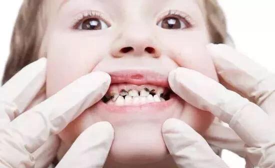 Nên vệ sinh kịp thời sau khi ăn để tránh vi khuẩn sản sinh và gây sâu răng.