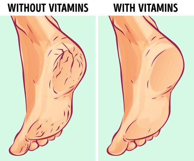 14.6 lý do khiến gót chân bị khô nứt1