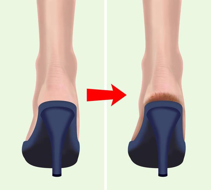 14.6 lý do khiến gót chân bị khô nứt2