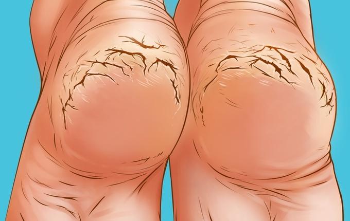 14.6 lý do khiến gót chân bị khô nứt3