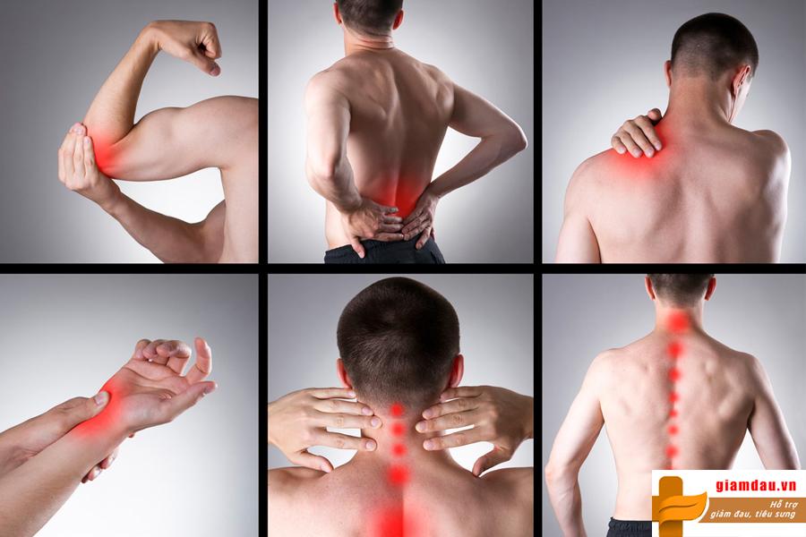 Hình ảnh đau nhức xương khớp toàn thân ở bệnh nhân