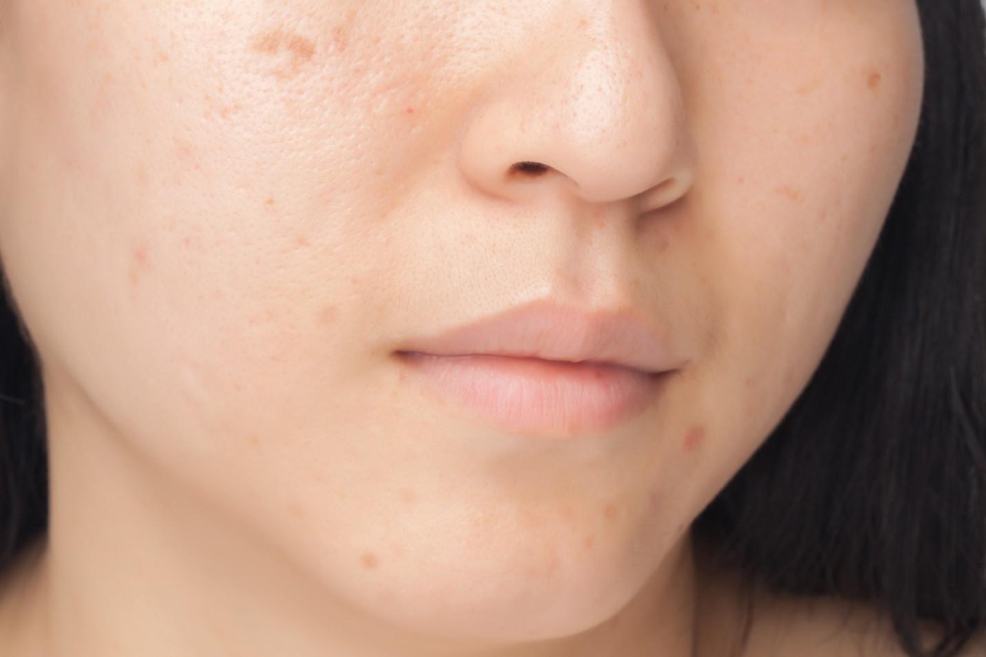 2. Mặt nạ từ sữa chua không đường giải quyết 3 vấn đề da thường gặp4