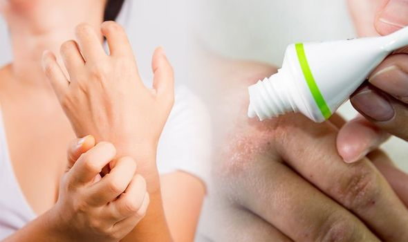 eczema-treatment-an-unusual-treatment-could-help-to-soothe-the-skin-1313807-1606128539097405345313